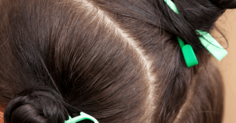 Five Answers to Your Questions about Lice