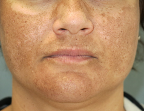What You Should Know About Melasma During or After Pregnancy
