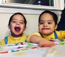 Finding Out My Twins Had Down Syndrome…